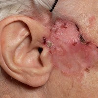 basal cell carcinoma on skin
