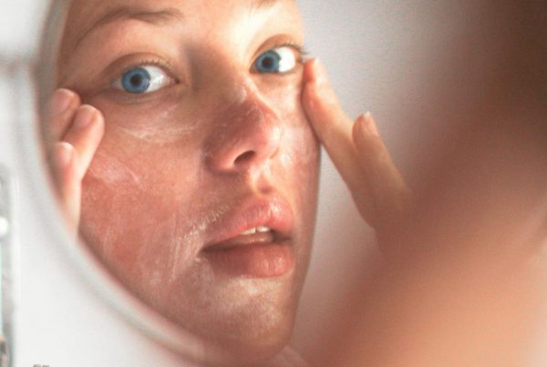Acne skin cleansing treatments | Harley Street Dermatology Clinic