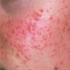 Adult Acne Treatment - Red Pimple Blemishes that can be treated with medical intervention from an acne dermatologist in London.