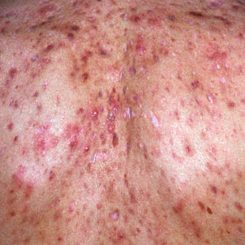 Adult Acne Scars that Require Treatment by a Acne Dermatologist Clinic