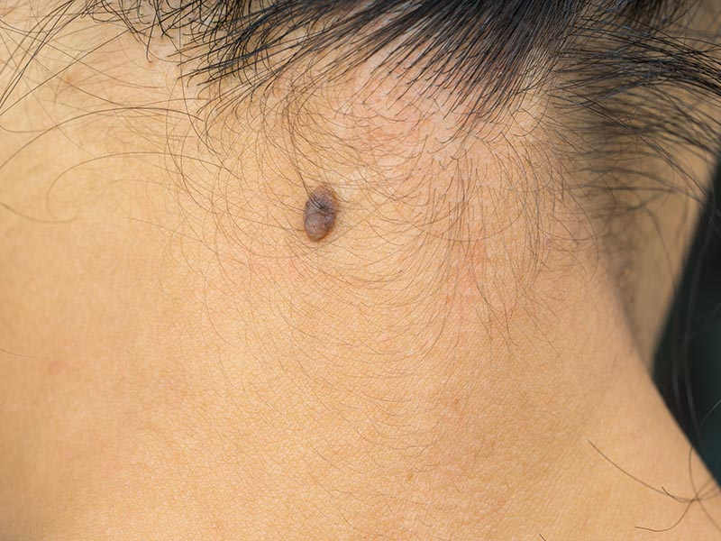 Black mole on the back neck skin of Asian woman need CO2 Laser to removal.