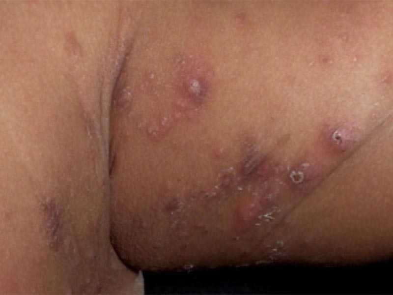 scabies on skin