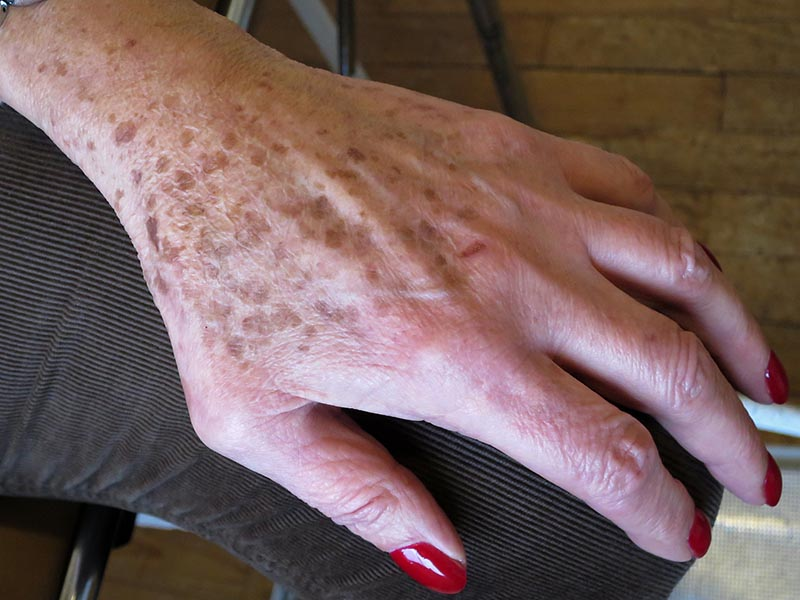 freckles on hands