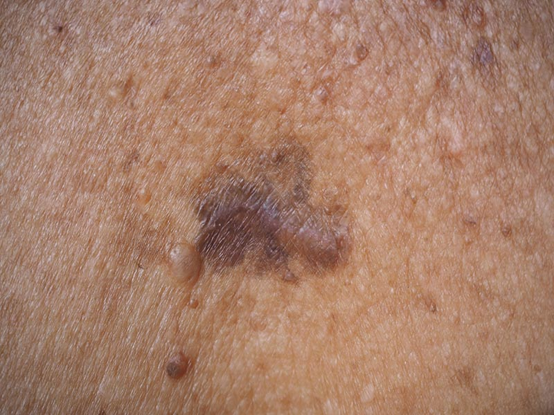 melanoma on collarbone