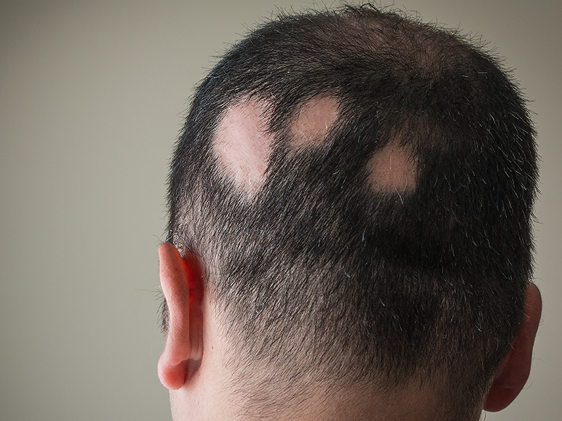 missing patches of hair on man's head