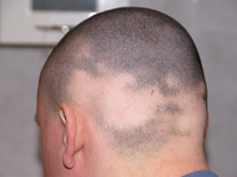 alopecia on man's head