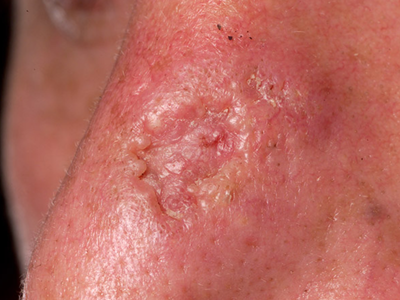 Basal Cell Carcinoma on body