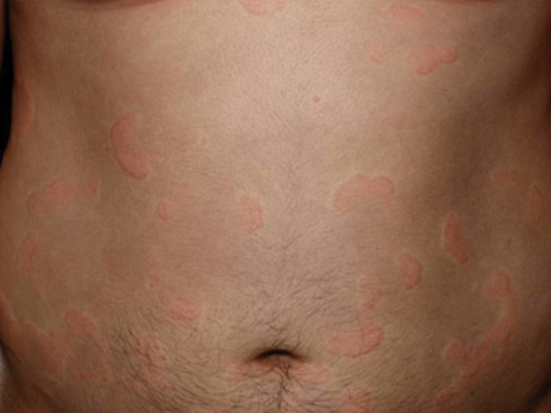 photograph of hives on stomach