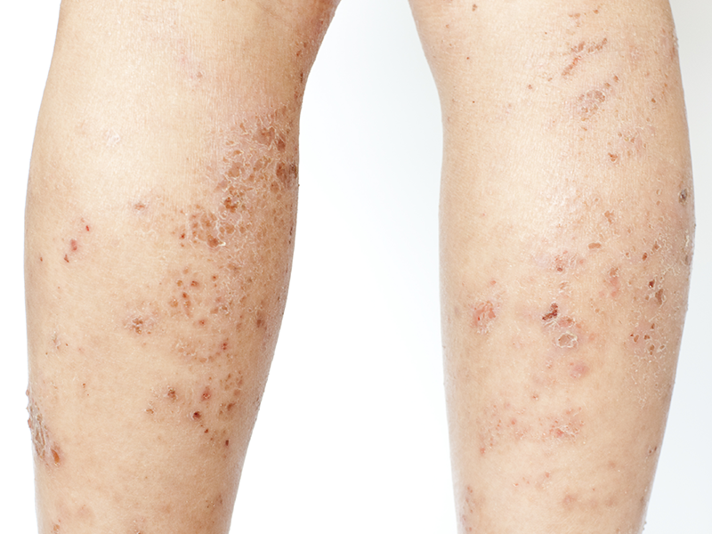 Lichen Planus on legs