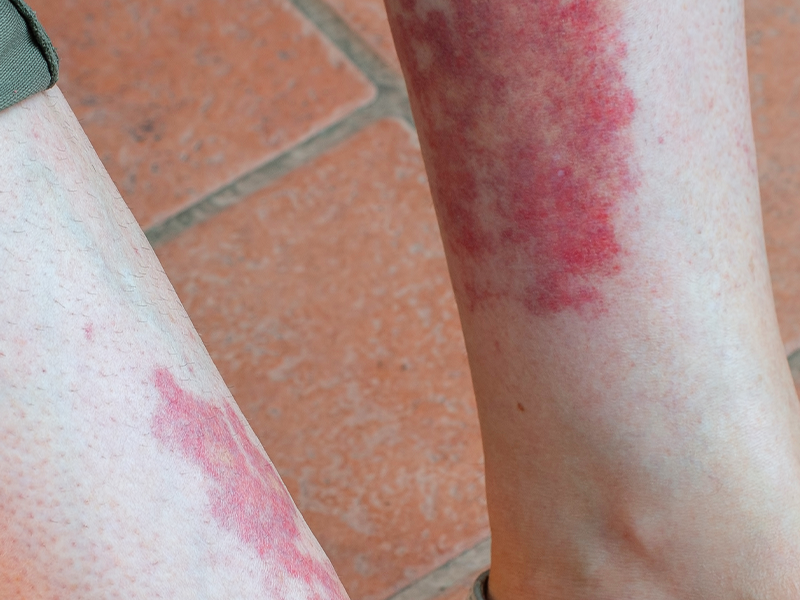Lichen Planus on leg