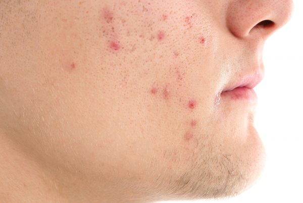 acne scar treatment for your face | Harley Street Dermatology Clinic