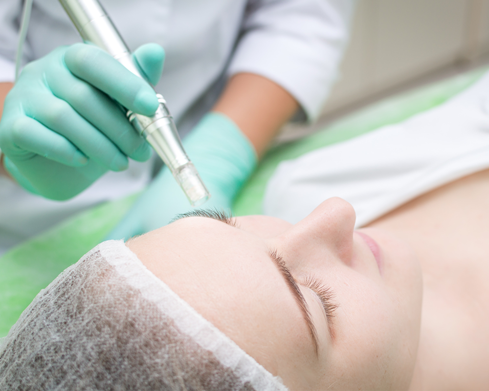 microneedling treatment taking place
