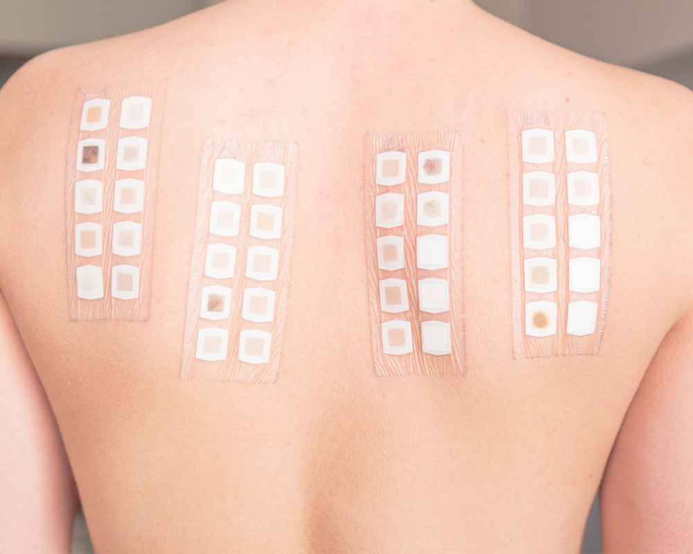 Patch testing for allergies involves putting stickers on the back to test