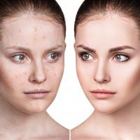 Image of face with acne | Do hormones cause skin conditions | Harley Street Dermatology Clinic