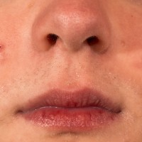 Image of acne laser treatment on a face | Harley Street Dermatology Clinic