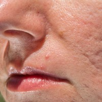 Image of Ice Pick Acne Scarring on Face | Harley Street Dermatology Clinic