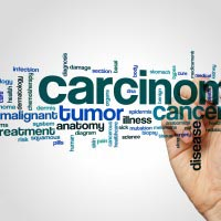Basal Cell Carcinoma word cloud
