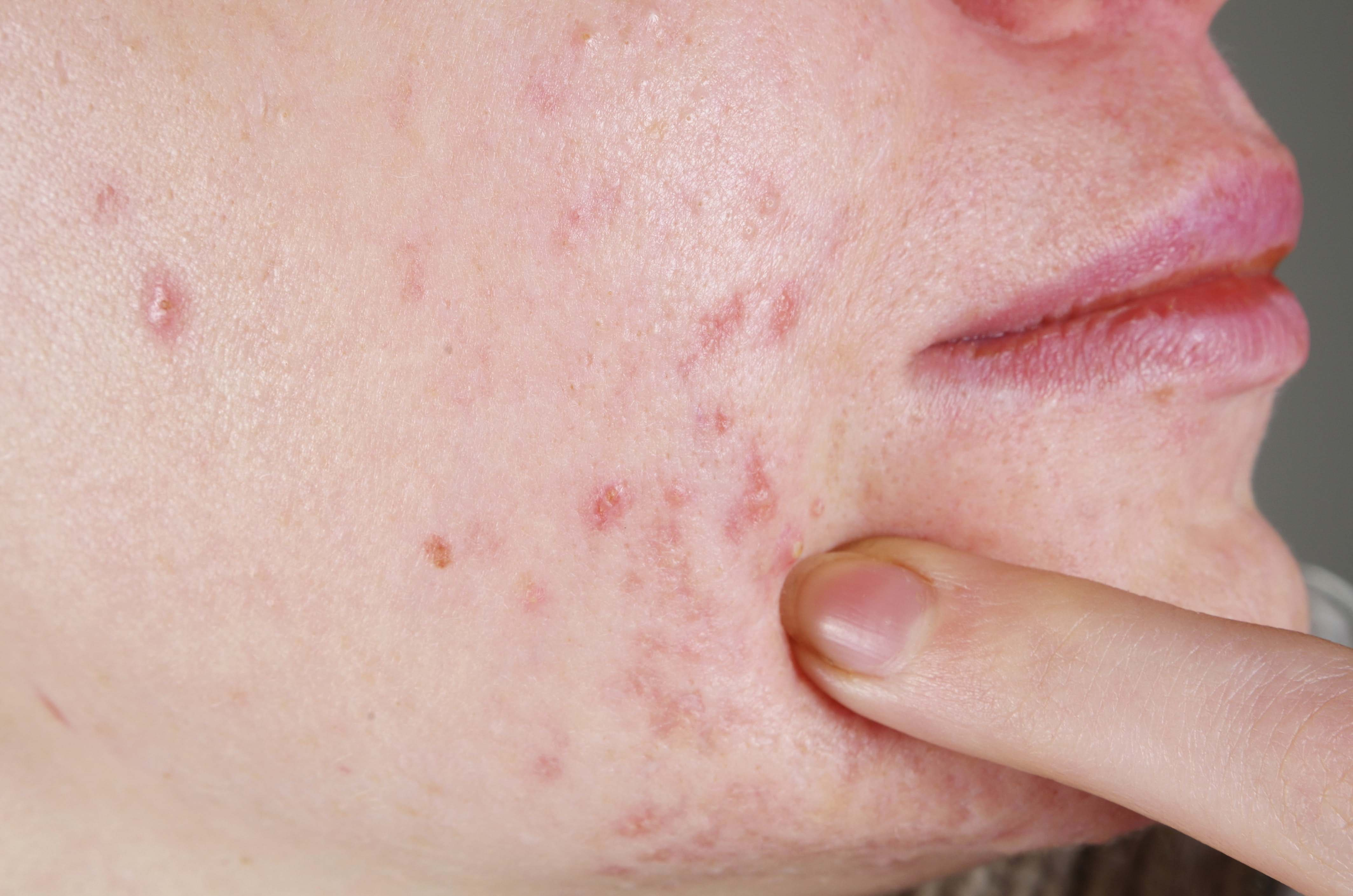 Image of Adult Acne on the Skin   Coping with Adult Acne   Harley Street dermatology Clinic