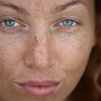 Freckles on a woman's face | Harley Street Dermatology Clinic