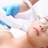 Laser Acne Treatment on the Face | Harley Street Dermatology Clinic