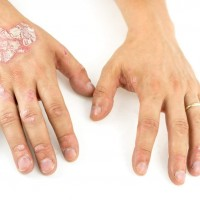 What Is The Treatment For Psoriatic Arthritis The Harley Street Dermatology Clinic