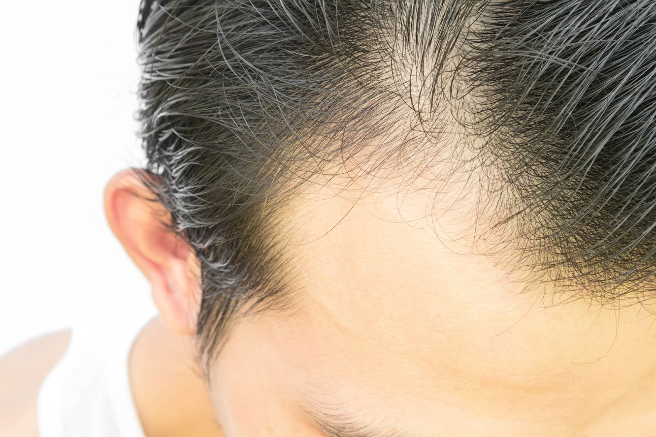 Image of premature hair loss on a man's head | Harley Street Dermatology Clinic