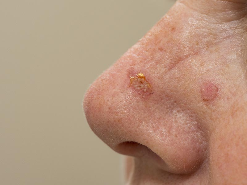 Acne Keratosis on Nose | Acne Keratosis Treatments in London