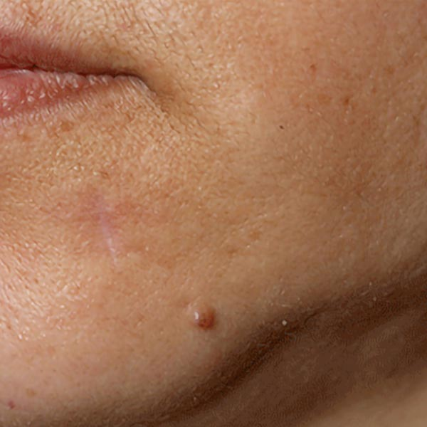 Cyst on Face | Cyst Treatment in London