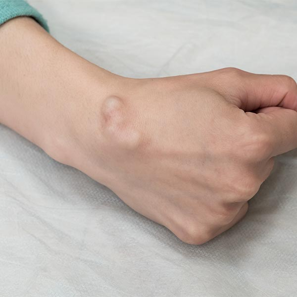 Cyst on clenched fist   Harley Street Dermatology Clinic