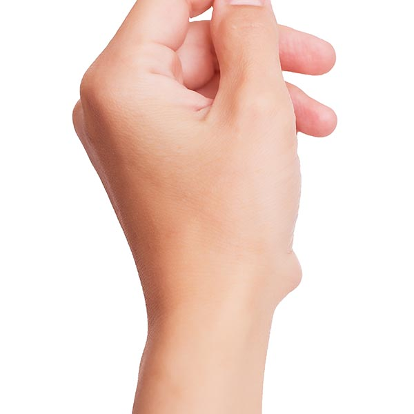 Cyst on the hand   Harley Street Dermatology Clinic
