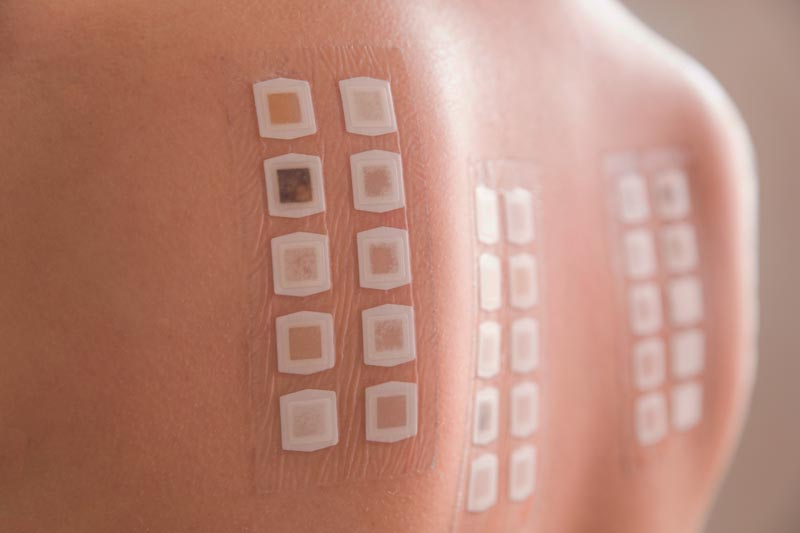 Patch Skin Test | Skin Allergies & Condition Treatment | Harley Street Dermatology Clinic | Expert Dermatologists in London