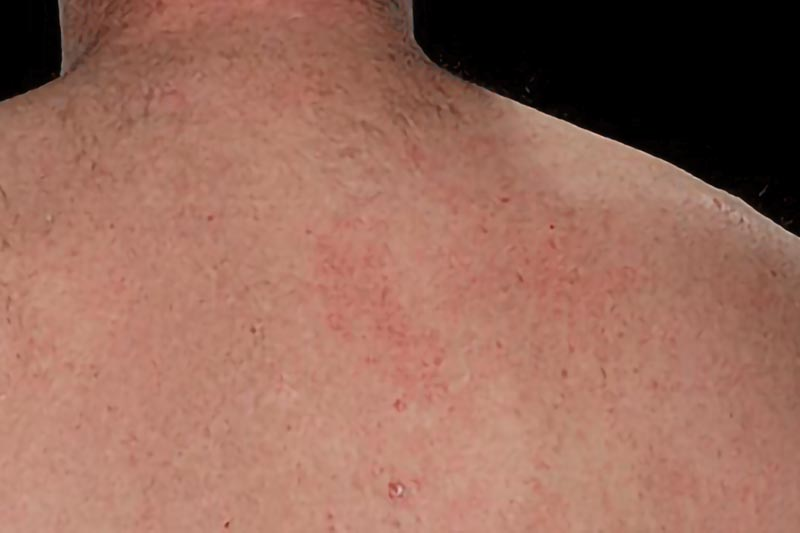 Psoriasis on back skin | Psoriasis Treatments in London | Harley Street Dermatology Clinic