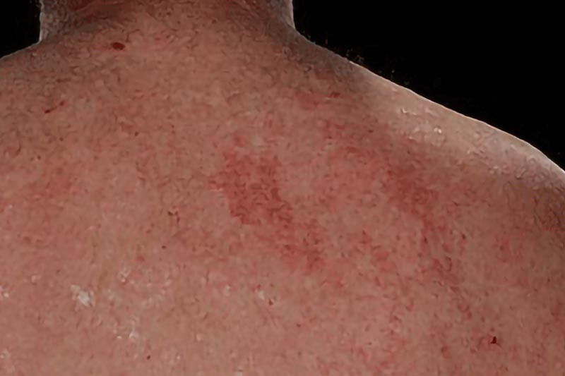 Severe Psoriasis on the Back | Harley Street Dermatology Clinic London