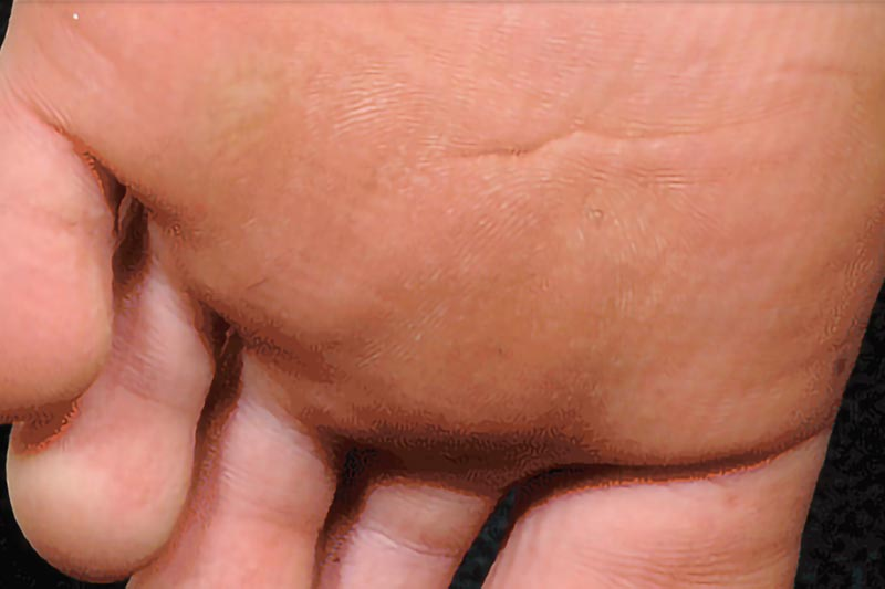 Wart on the bottom of the foot | Harley Street Dermatology Clinic
