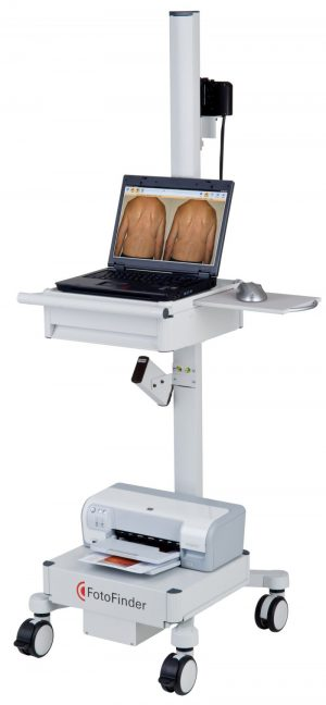 Image of Fotofinder machine for mole mapping | Harley Street Dermatology Clinic