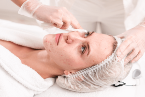 Acne treatment on the face | Harley Street Dermatology Clinic