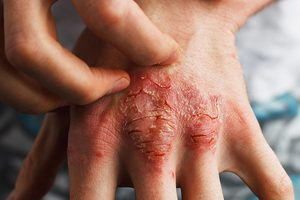 psoriasis on the hand | Harley Street Dermatology Clinic