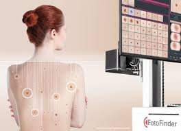Image of Fotofinder mapping moles on a woman's back | Harley Street Dermatology Clinic